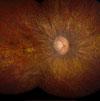 Leber congenital amaurosis, LCA